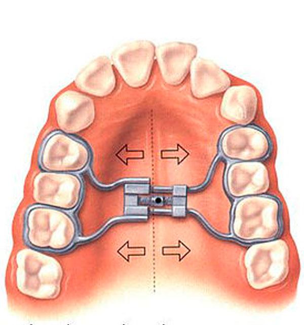 Aparatos fíjos de expansión maxilar