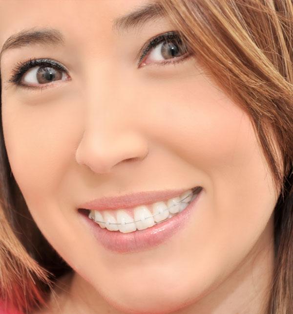 ortodoncia dentofacial