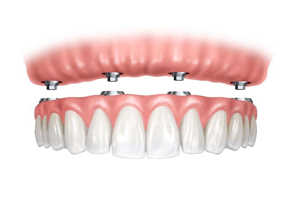 Ventajas de los implantes de carga inmediata