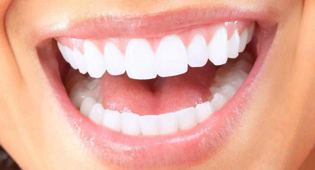 endodoncias en Mataró