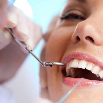 Cuidados carillas dentales